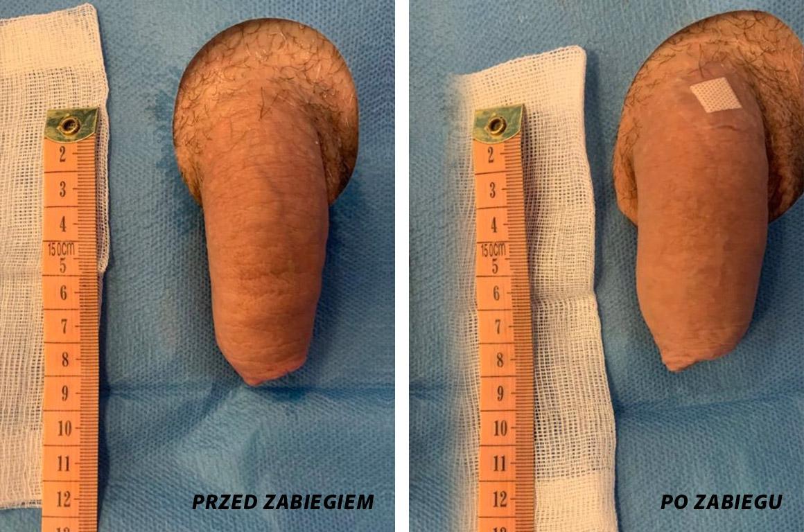 powiększanie penisa szczecin